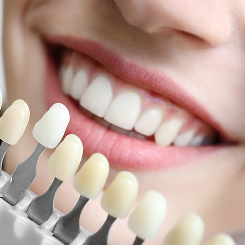 Young woman choosing color of teeth at dentist, closeup